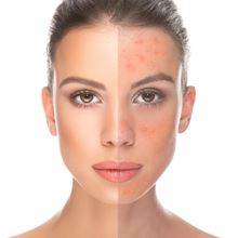 Picture for category Problematic skin, Acne